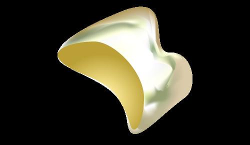 ゴールドクラウン(金歯)